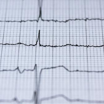 Variabilita Della Frequenza Cardiaca Hrv La Nuova Misura Del Benessere Efficacemente